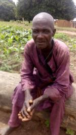 Outbreak of fresh cases of River blindness in local communities of Kaduna state has left several blind